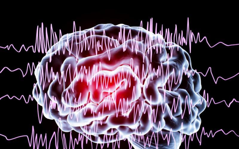 blog-epilepsy