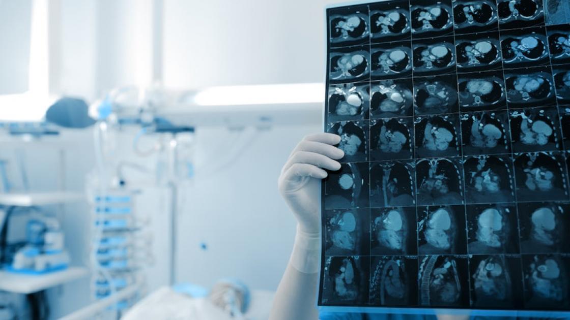 blog-neurology